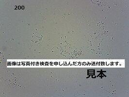 200倍精子画像※写真付き検査のみ送付