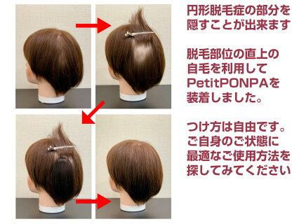 「PetitPON-PA(プチポンパ)」で円形脱毛症を隠してみます