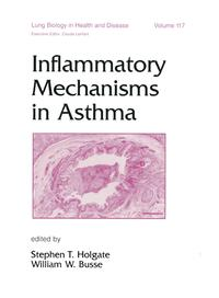 Inflammatory Mechanisms in Asthma【電子書籍】