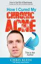 楽天Kobo電子書籍ストアで買える「How I Cured My Chronic Acne: How to Get Rid of Blackheads, Pimples and Zits With a Nutritional Approach【電子書籍】[ Chris Klein ]」の画像です。価格は109円になります。