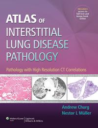 Atlas of Interstitial Lung Disease PathologyPathology with High Resolution CT Correlations【電子書籍】[ Andrew Churg ]