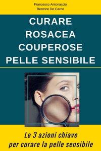 Curare Rosacea Couperose e Pelle Sensibile【電子書籍】[ Beatrice De Carne ]