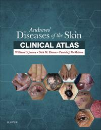 Andrews' Diseases of the Skin Clinical Atlas E-BookExpert Consult【電子書籍】[ William D. James, MD ]