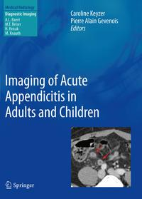 Imaging of Acute Appendicitis in Adults and Children【電子書籍】