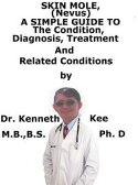 Skin Mole (Nevus), A Simple Guide To The Condition, Diagnosis, Treatment And Related Conditions【電子書籍】[ Kenneth Kee ]