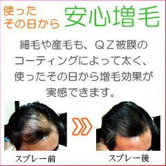 QZ増毛スプレーのしくみ2