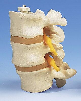 3B社 腰椎模型 3交連腰椎モデル (a76-8)