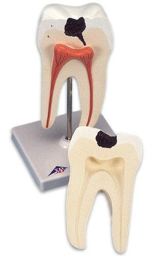 3B社 歯模型 下顎大臼歯(2根)モデル (d10-4) 【smtb...