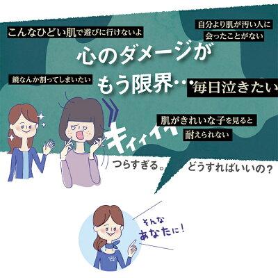 ニキビケアニキビ跡化粧水にきび薬用アクレケア【医薬部外品】
