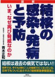 ◆◆結核の感染・発病と予防 いま、なぜ再び脅威なのか / 青木正和/著 / 素朴社