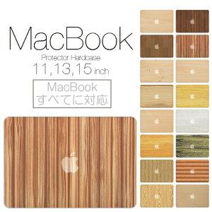 【 MacBook Pro & Air 】オシャレな デザイン シェルカバー 登場!【 MacBook Pro & Air 】【メ...